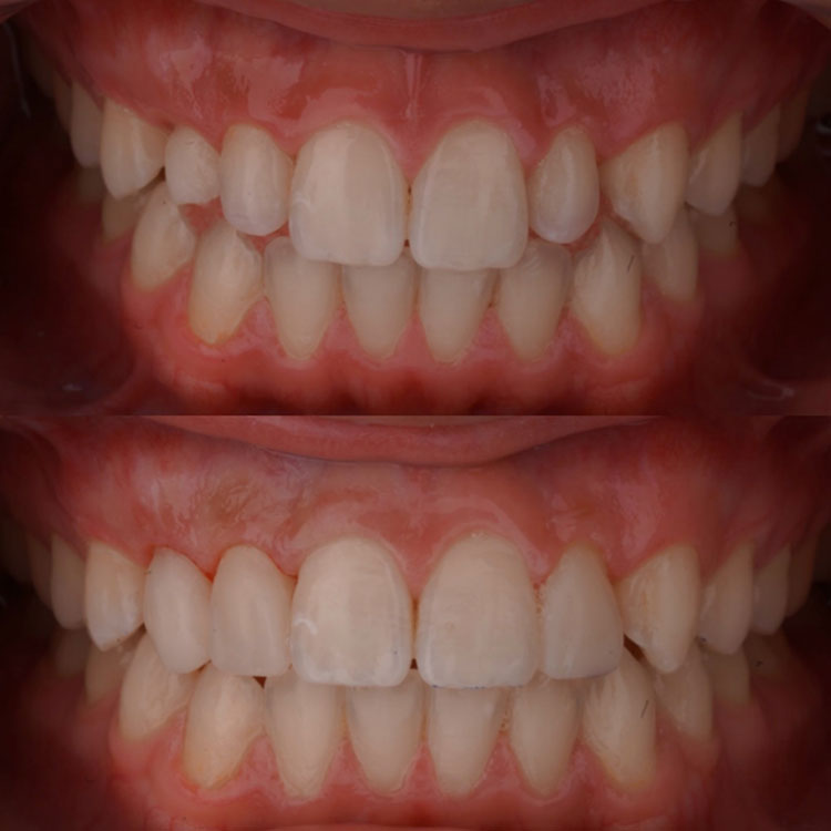 Composite veneers done by Dr. Garza